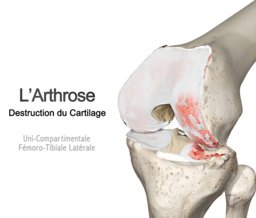 arthrose fémoro patellaire externe